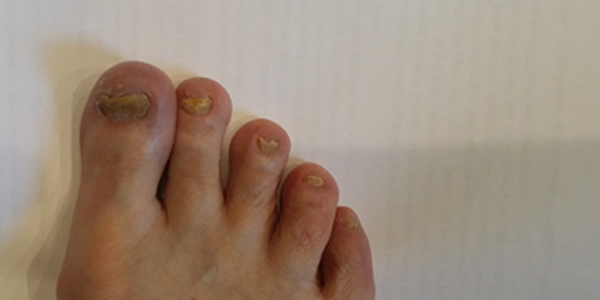 Best Toenail Fungus Treatment with Cinnamon Oil – Cinnamon Zone Blog