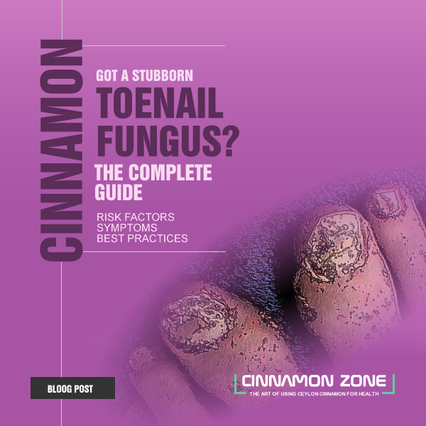 Best Toenail Fungus Treatment with Cinnamon Oil – Cinnamon Zone Blog